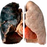 COPD, jouw lijflijn